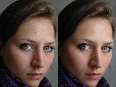 retouch_before-after