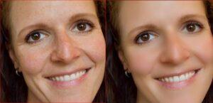 sproeten verwijderen in photoshop  voor en na